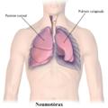 Blausen 0742 Pneumothorax-es.png