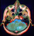 Brain MRI 143335 rgbcb ce.png