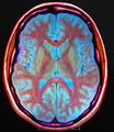 Brain MRI 145729 t1 pd t2 18F Epil.png