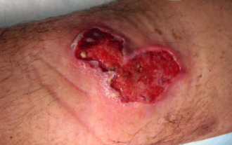 Mycobacterium ulcerans - Image: Buruli ulcer traveler