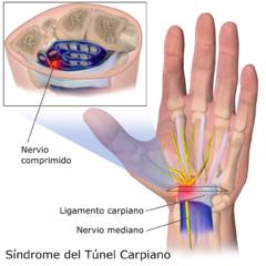 Síndrome del túnel carpiano Fuente: Bruce Blaus