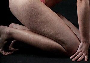 Deutsch: Cellulite am Oberschenkel
