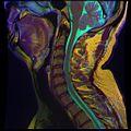Cervical MRI R T1WFSE G T2WfrFSE STIR B 07.jpg