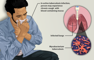 Tuberculosis in India Health issue in India