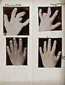 Down's syndrome affecting the hands and fingers. Four photog Wellcome V0030027.jpg