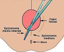 epiziotomia a fost vizuală mese de testare a vederii la domiciliu