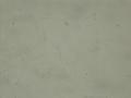 Fusarium macroconidia and microconidia 160X.png