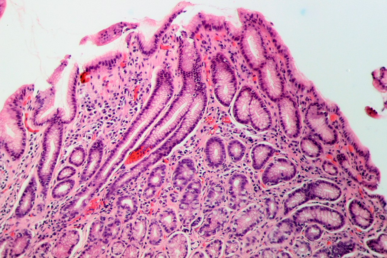 Chronic gastritis caused by Helicobacter pylori   Competently about health on iLive