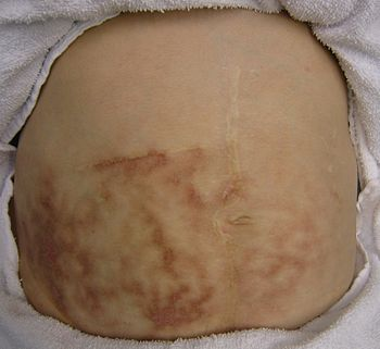 English: Hot bottle rash in a person with chronic abdominal pain who found some relief from the application of heat.