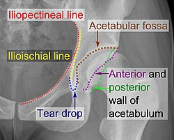 Iliopectineal line, ilioischial line, tear drop, acetabular fossa, and anterior and posterior wall of the acetabulumi.jpg