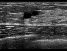 Gutartiger knoten in der brust ✨ Ursachen: Knoten