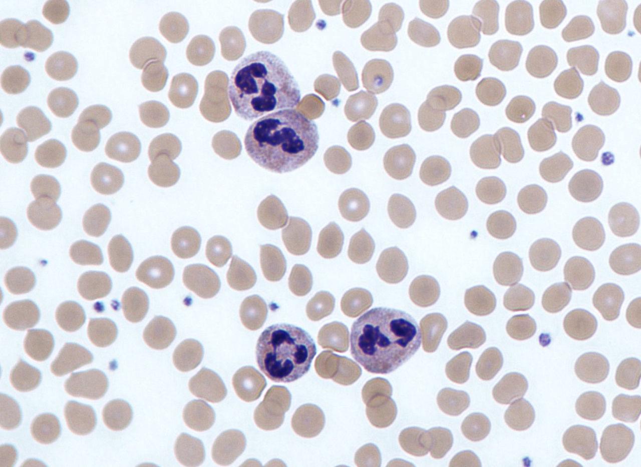 Neutrophils.jpg
