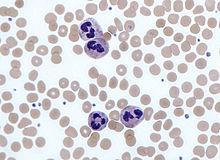 A round cell with a lobed nucleus surrounded by many slightly smaller red blood cells.
