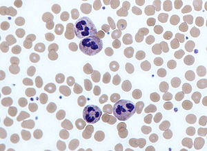 Neutrophil - Neutrophils with segmented nuclei surrounded by erythrocytes and platelets. Intra-cellular granules are visible in the cytoplasm (Giemsa stained).