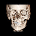 Parry Romberg syndrome CT reconstruction, bone.jpg