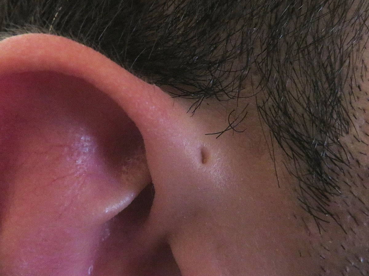 Preauricular Sinus And Cyst Wikipedia