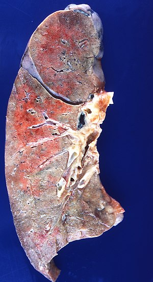 Radiation pneumonitis (4863802675).jpg