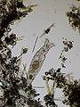 Rotifer and diatoms.jpg