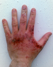 Red erosions, some with crusting, all on the  back of an adult hand