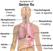 Symptoms of swine flu.svg