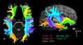 The diffusion tensor tractographies of neural tracts for language fnhum-07-00749-g001.png