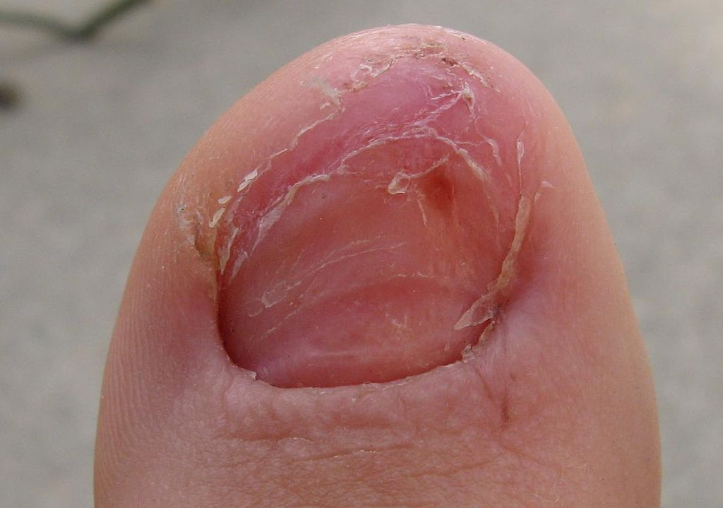 File:Toe Without Nail.JPG - Wikimedia Commons
