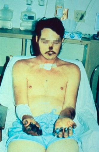 Acral necrosis due to bubonic plague