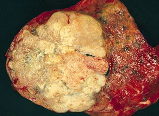 Adenocarcinoma of the lung non-small cell lung carcinoma that derives from epithelial cells of glandular origin