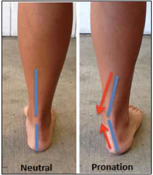 b3e5ab4e4b Demonstration of the right foot in pronation, neutral and supinated  subtalar joint placements. Over-pronation (excessive pronation) occurs when  the ankle ...