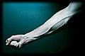 Arm veins - 20090522.jpg