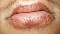 herpes simplex type 2 is also known as robin benway epub