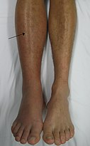 Trombosis, Rehabilitacion