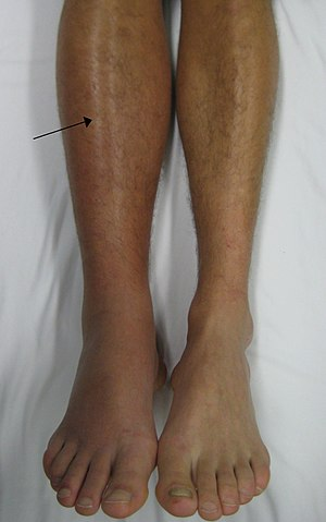 A deep vein thrombosis of the right leg. Note ...