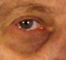 Atopitchesky la dermatite autour des yeux chez lenfant