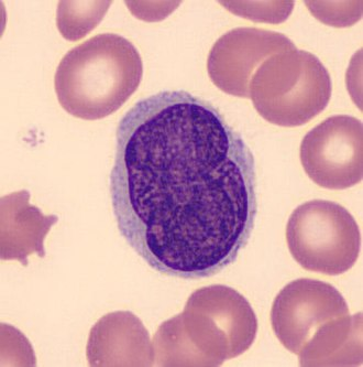 Buttock cell - Buttock cell seen in Sézary syndrome (Peripheral blood - MGG stain)