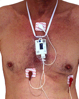Holter monitor - Holter monitor