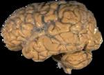 תצלום מוח אנושי
