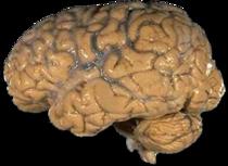 Human brain NIH.png