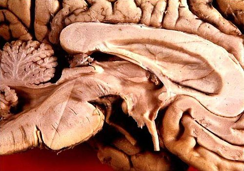 Human brain left midsagitttal view closeup.JPG