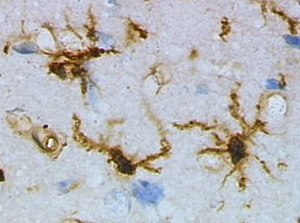 Microglia - Microglia in resting state from rat cortex before traumatic brain injury (lectin staining with HRP)