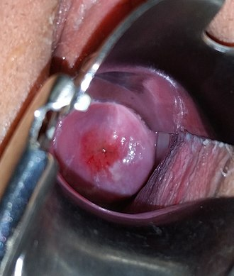 Pelvic examination - A speculum exam showing the ectocervix of a postmenarchal, nulliparous woman.