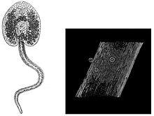 a helmintára jellemző fascioliasis