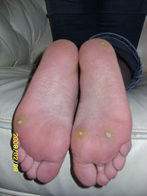 English: plantar warts, extremely painful