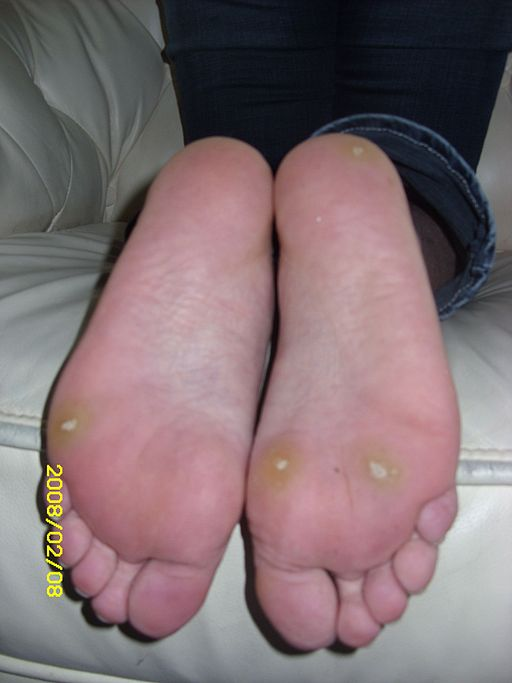 Planters Warts From HPV On Foot