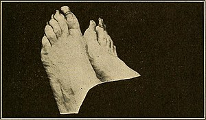Practical podiatry - (1918) (14755719406).jpg
