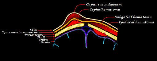 Scalp hematomas