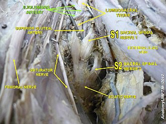 Iliolumbar artery - Image: Slide 1z