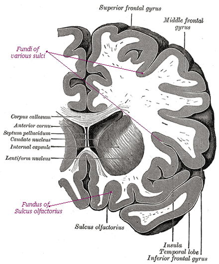 Image of the human brain showing sulci, gyri, and fundi shown in a Coronal section. Sulci Gyri Fundi in section of Human brain.jpg