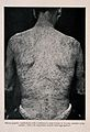Syphilis; lesions and rash on man's back, 1905 Wellcome V0010353EL.jpg