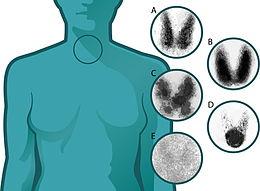 adenoma tossico tiroide